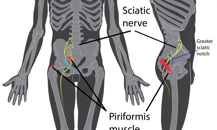 Ischias verhelpen met chiropractische druktechnieken en oefeningen