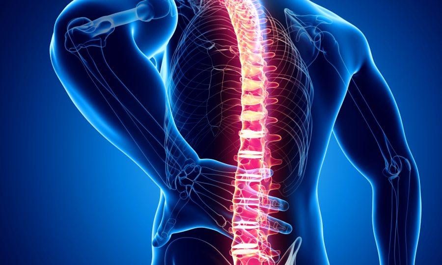 Veel voorkomende oorzaken van rugpijn