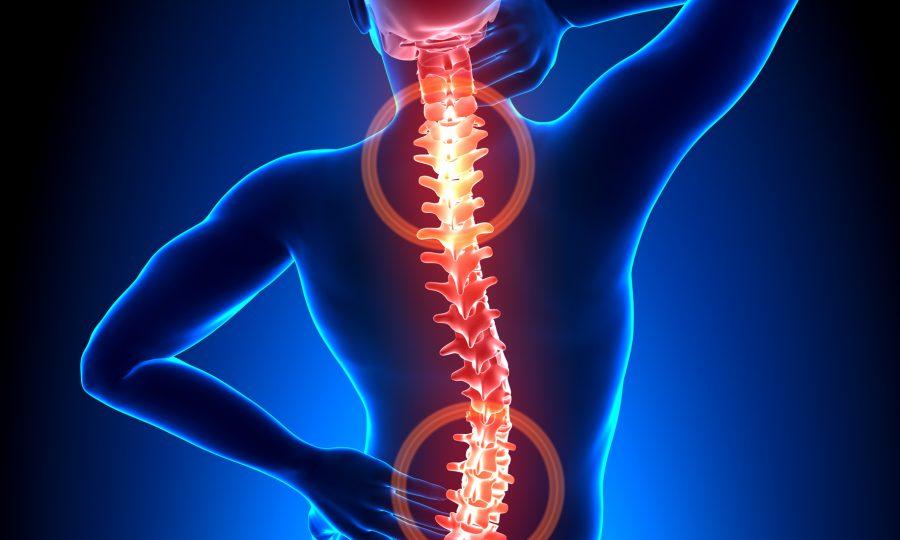 Uitstraling van pijn is te verhelpen bij Chiropractie Westland
