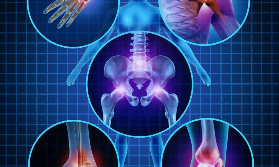 Artritis hoeft niet te betekenen dat je gas terug moet nemen